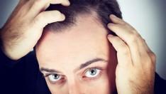 Prostat Kanseri Riski Kimler de Daha Fazla?