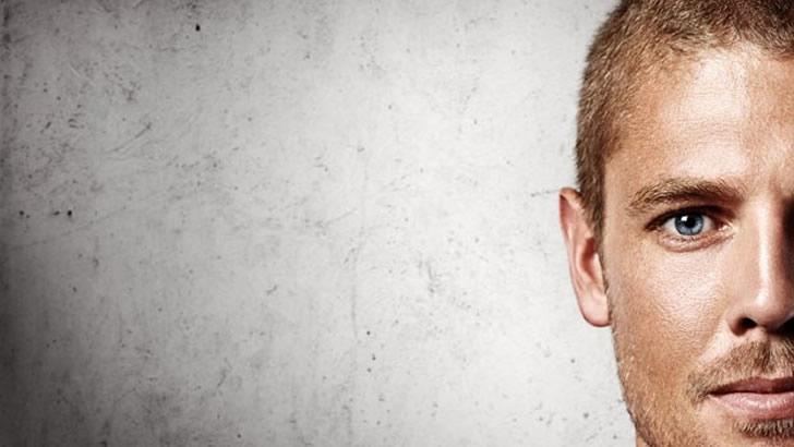 Saçı Dökülen Erkeklere Kötü Haber